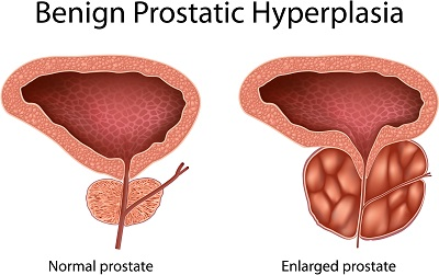 BPH-Enlarged-Prostate-normal-prostate-urologists-nyc-01