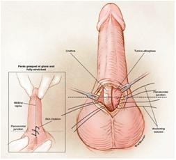 penile reconstruction
